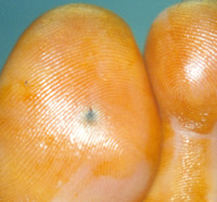 Foreign Body in Toe