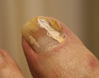 Fungal nail infection - onychomycosis