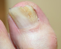 Fungal Nail during treatment