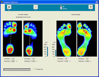 Comparing Pronated Foot with Normal Foot