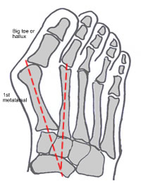 Hallux Valgus and Bunion