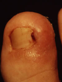 Ingrowing toenail showing swelling and redness