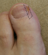 Nail wedge to be removed