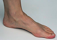 Normal arch in foot