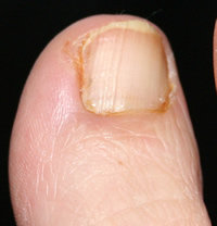 Partial Nail Avulsion Day 12