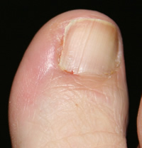 Partial Nail Avulsion Day 18