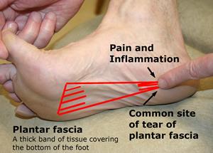 torn plantar fascia treatment